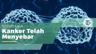Merawat Kanker dengan Terapi Sinar Proton - Hitachi.