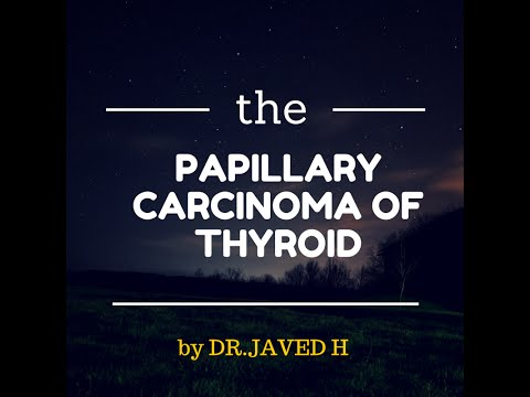 Papillary Carcinoma of Thyroid
