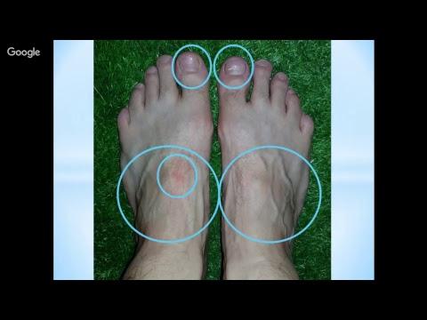 Foot Reading Video 12-5-17