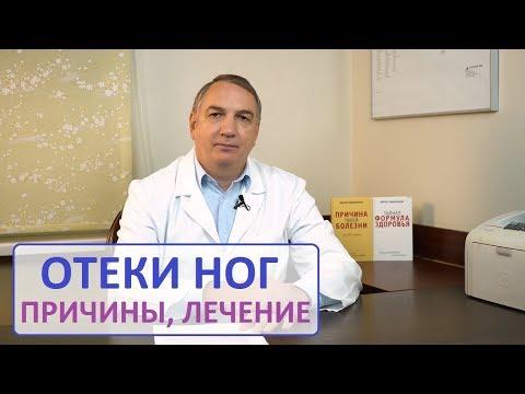 ОТЁКИ ног, причина и лечение. Отекают ноги – что делать. | беременности | евдокименко | сердечные | почечные | причина | отекают | лечение | отекли | женщин | доктор