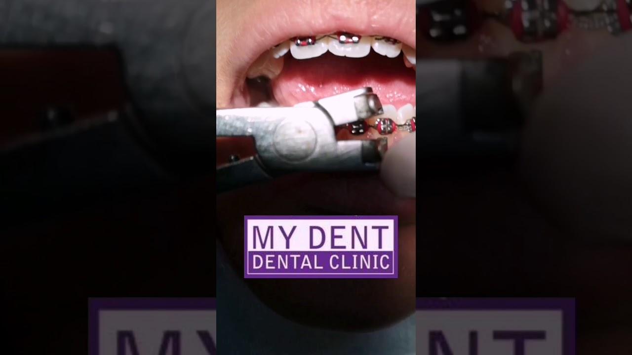 จัดฟันมาตั้งนาน ถึงเวลาอำลา ถอดเครื่องมือถอดเหล็กจัดฟันกันเสียที