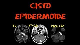 Videoaula Radiologia: RM do crânio: Cisto epidermoide