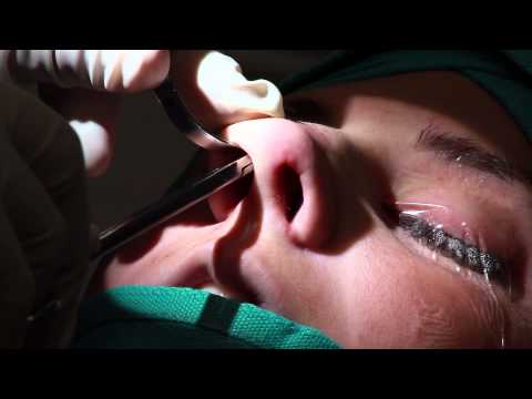 Watch Dr. Kanodia as he performs a full CLOSED Rhinoplasty