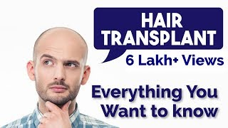 Hair Transplant - everything you want to know about - FUE | FUt, time, cost, after effects