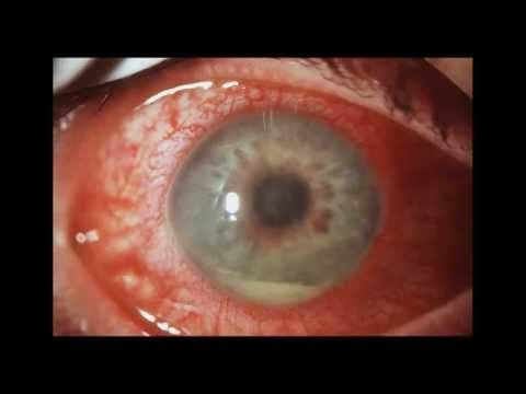 Увеит глаза: причины, симптомы, диагностика и лечение