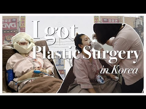 I Got Plastic Surgery In Korea: Part 1 ⎮ Rhinoplasty, Jaw Reduction, Double Eyelid ⎮ Emily Quak