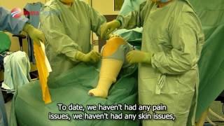 Др. Морган-Джонс, травматолог-ортопед, использование гемаблока, Кардифф, Британия