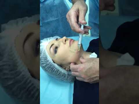 Mezoterapiya lica Korrekciya ovala  vtorogo podborodka