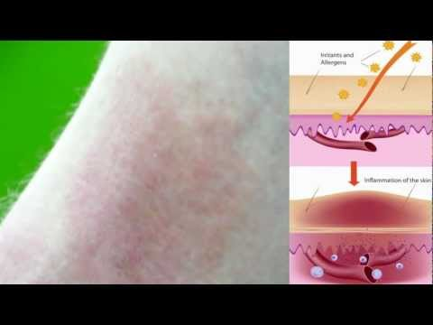 Eczema - What causes it?