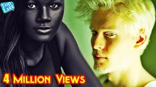 6 People with Unique Skin Color | Most Unique Skin colors |  Freckles Facts thumbnail