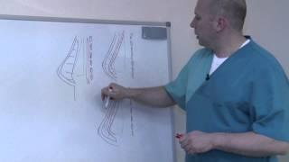 Увеличение груди. Под мышцу или под железу?(http://doctor-sokolov.ru/ Один из самых распространенных вопросов относительно операции увеличение груди. Как лучше..., 2012-08-11T11:56:40.000Z)