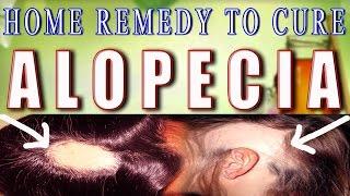 Home Remedy for Alopecia / Baldness - Part 1 II गंजेपन का घरेलू उपचार भाग -1 II