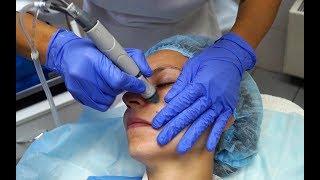 Уход за кожей лица HydraFacia