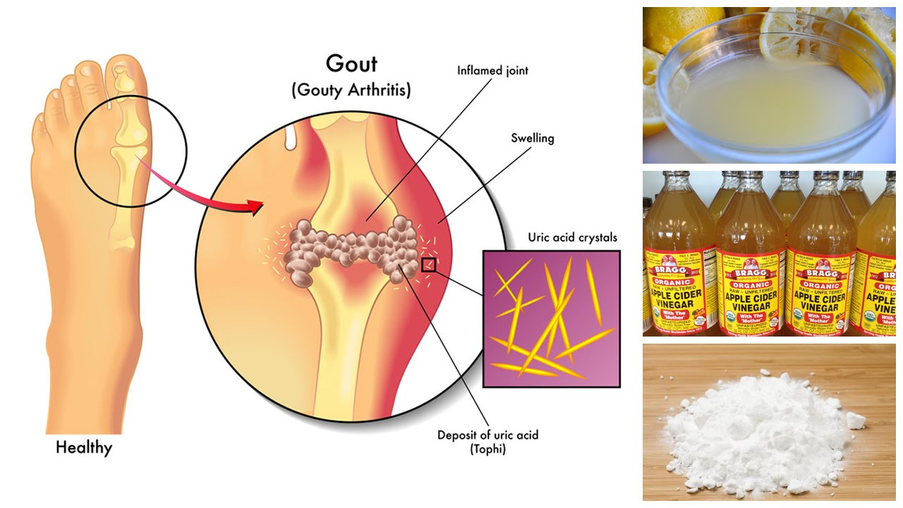 foods and drinks high in uric acid foods that avoid uric acid sore foot after gout attack