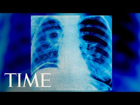 A Man Ruptured His Throat Trying To Hold Back A Big Sneeze, Medical Journal Reports | TIME
