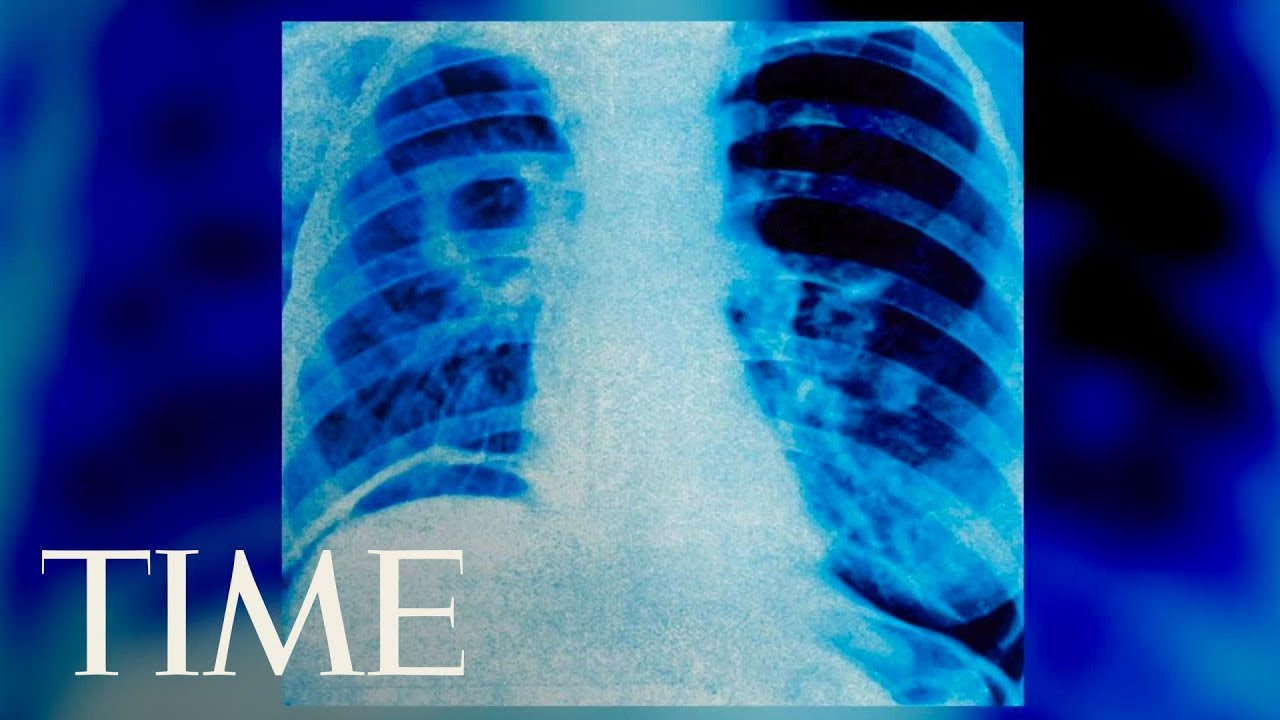 a-man-ruptured-his-throat-trying-to-hold-back-a-big-sneeze-medical-journal-reports-time