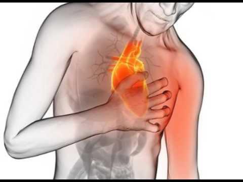 angine de poitrine dyspepsie