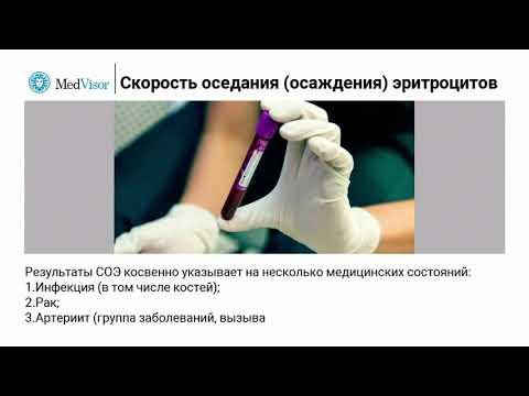 СОЭ в анализе крови: расшифровка, результаты, норма