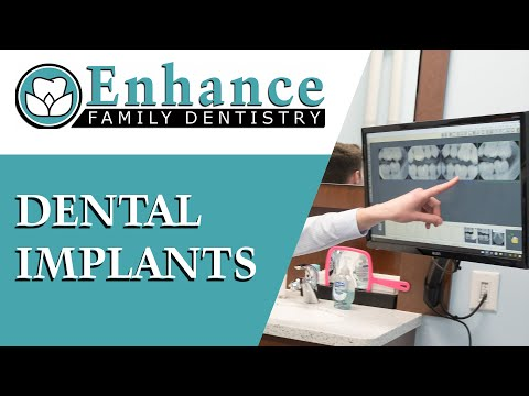dental-implants-|-dr.-paresh-shrimankar-|-enhance-dental-|-ann-arbor-dentist