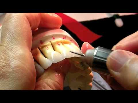 Dr Sun Shares How She Creates Porcelain Veneers In Her In