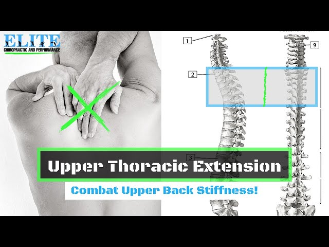 How to Improve Upper Thoracic Extension   Chesterfield Chiropractor