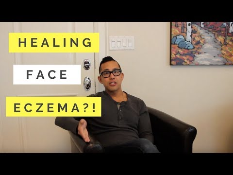 Find Out How This Patient Healed Her Face Eczema