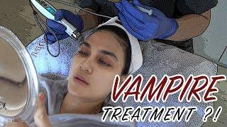 Download Video VAMPIRE TREATMENT ?! MP3 3GP MP4