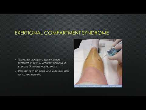 Chronic Exertional Compartment Syndrome in the Athlete