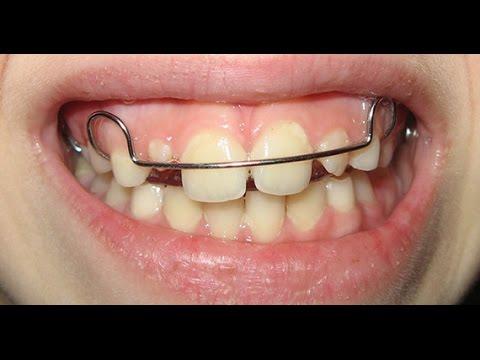 Выравнивание зубов у ребенка 6 лет 114