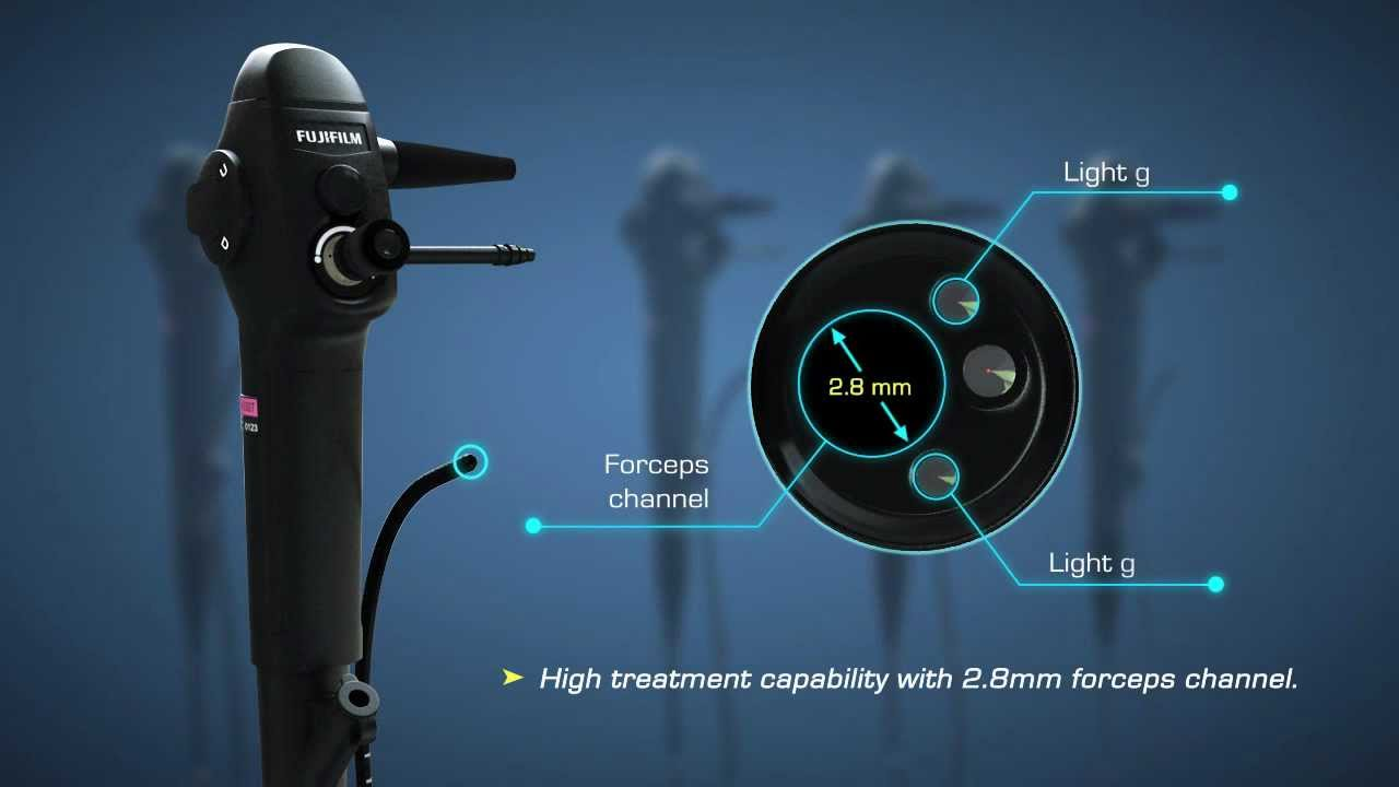 Fujifilm Bronchoscopy System - YouTube