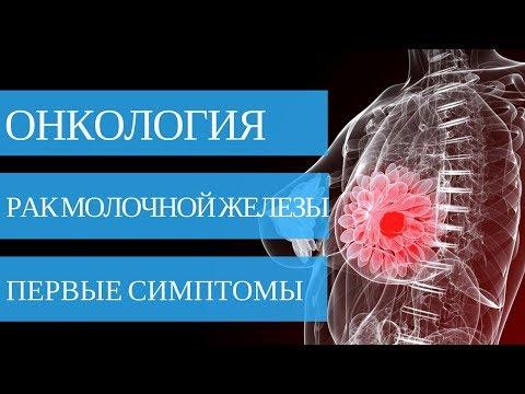 Рак молочной железы. 1 стадия - фото 1