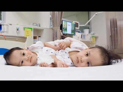 15-Month-Old Conjoined Twins Are Separated After 6-Hour Surgery in Australia