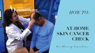 How to Perform a Self Skin Cancer Check
