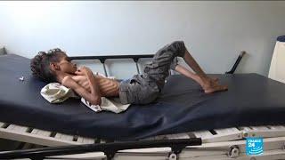 Yemen: Up to 85.000 children dead from malnutrition, starvation