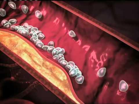 fungsi prednisolone 5mg liquid