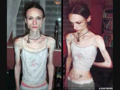 Teenage Obesity and Anorexia - A Perfect Lie.