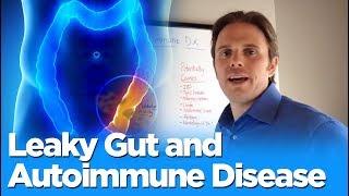 Leaky gut and autoimmune disease