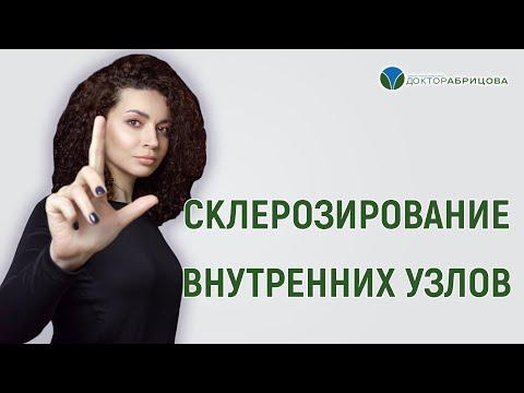 Склерозирование внутренних узлов. Прямой эфир с Марьяной Абрицовой