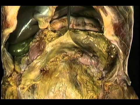 Giai phau O bung tieu hoa (digestive system)