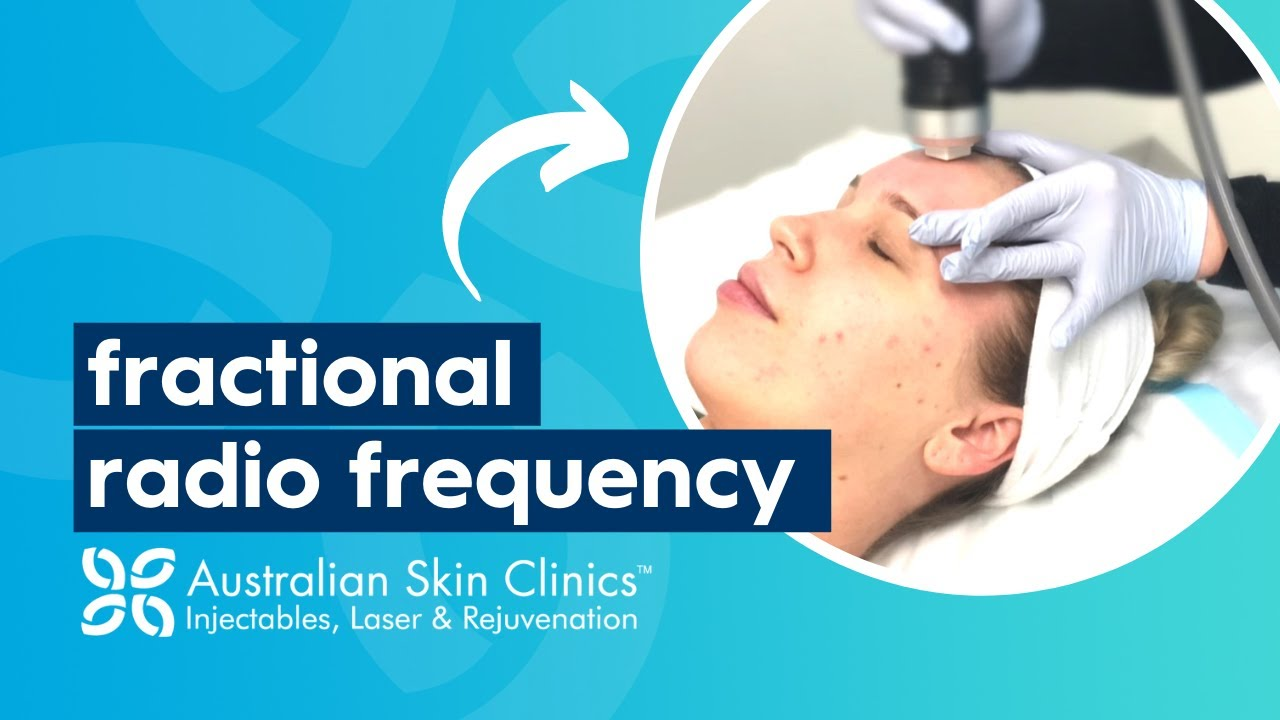 Rf Microneedling Aftercare