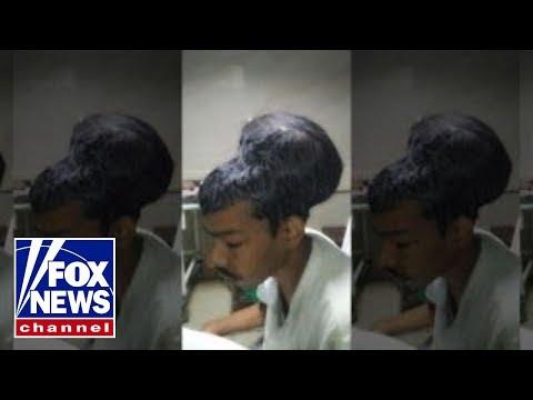 Indian doctors remove four-pound brain tumor