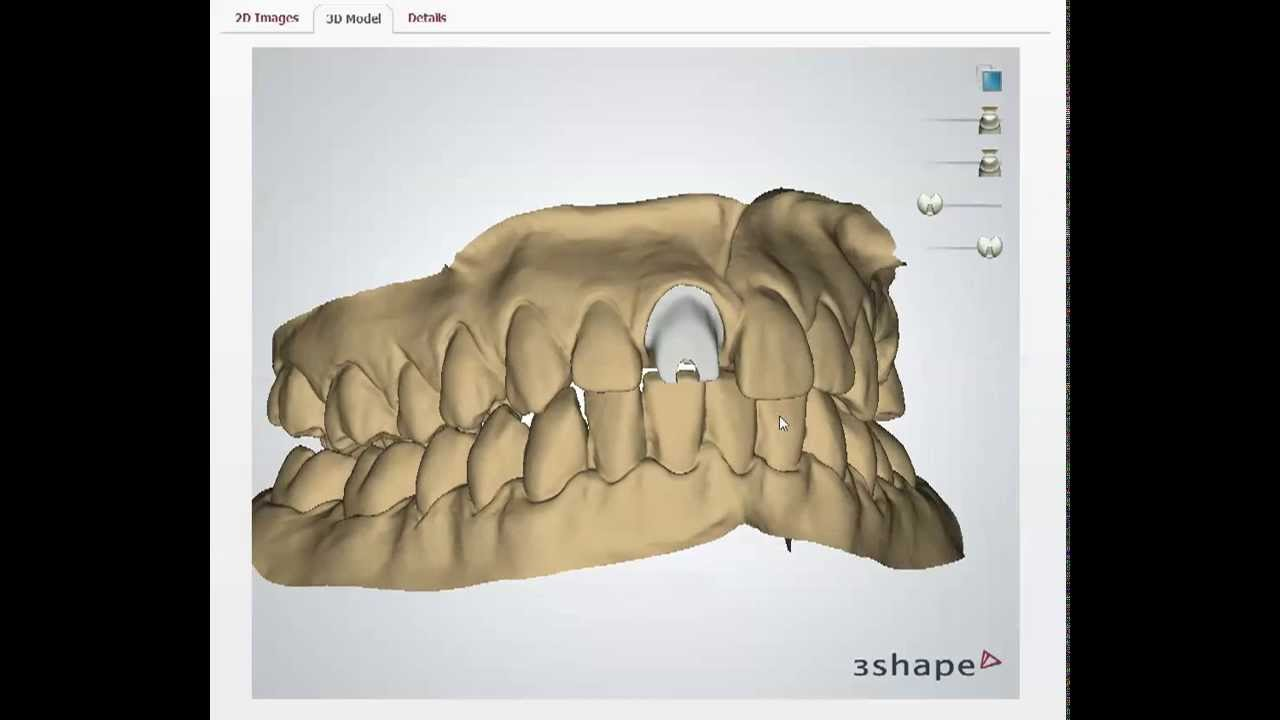 Trios Scan 3Shape Communicate Abutment and Crown