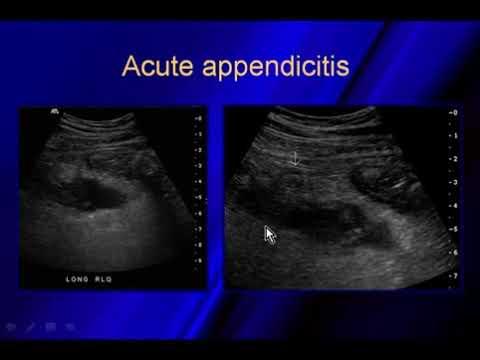 appendix sono 3