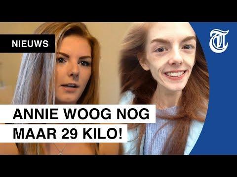 Anorexia-meisje onthult geheim metamorfose