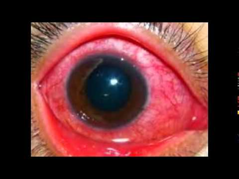 Gonorrhea Of The Eye Pictures - YouTube