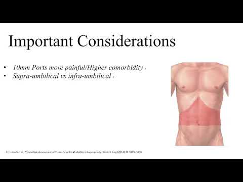 Port Placement for Laparoscopic Colonic Resections