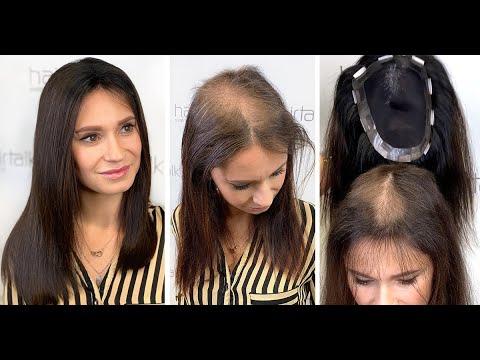 Алопеция? Редкие волосы...