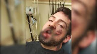 Download Video Rekaman Vape Meledak di Mulut Seorang Pria MP3 3GP MP4