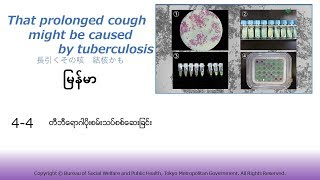 4-4 [Myanmar]結核菌の検査