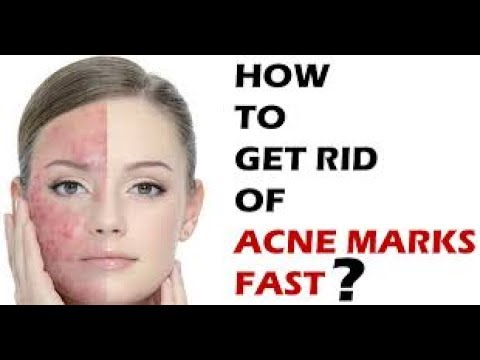 How to Get Rid of Acne|Awesome Learning How To Get Rid Of Acne Is Not Difficult